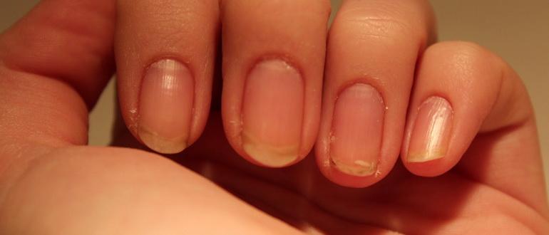 Сильно слоятся ногти на руках