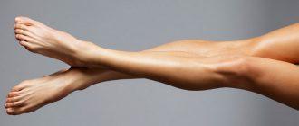 ноги после энзимной эпиляции