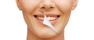 результат отбеливания зубов: до и после