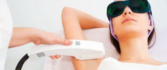 Элос-эпиляция - лучший способ избавиться от нежелательных волос