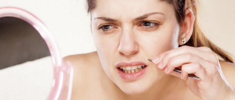 Как убрать усы у девушки?