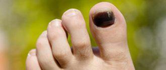 Почернел ноготь на ноге: причины