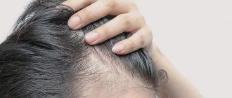 Сильное выпадение волос у женщин: причины